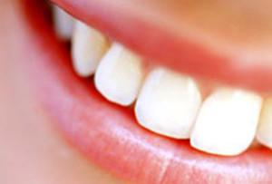 Дисколориты — нарушение цвета зубов