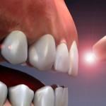 Протезирование зубов еще никогда не было таким доступным!