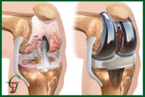 Виды протезов тазобедренного сустава