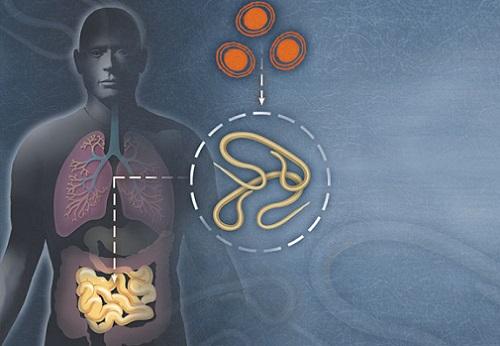 Выведение паразитарной инфекции дома без вреда для организмов детей и взрослых