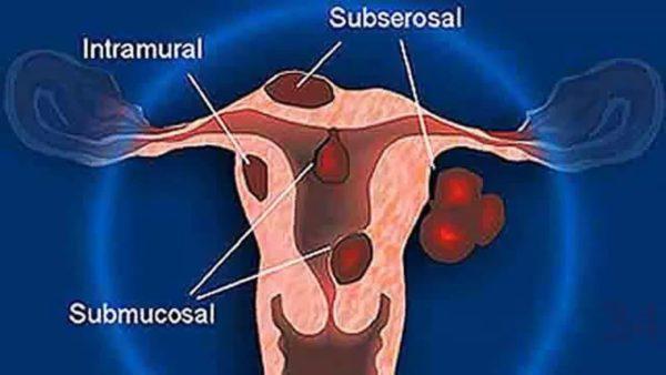 Опасна ли субмукозная миома матки?