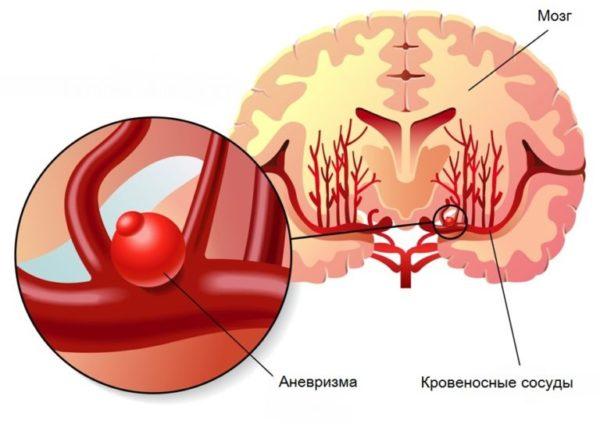 Аневризма сосудов головного мозга: причины, симптомы, лечение