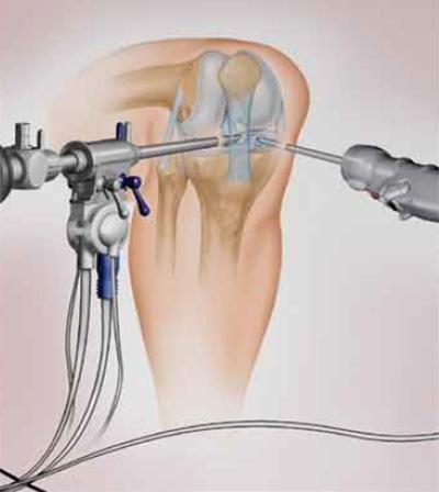 Что такое артроскопия суставов