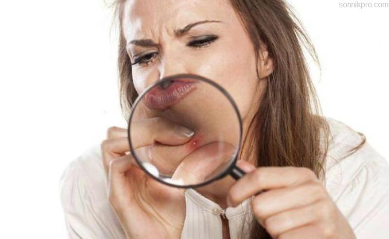 Что такое акне и каковы причины возникновения этого заболевания?